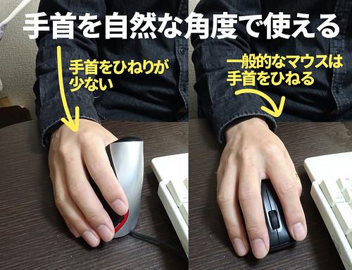 腱鞘炎予防マウス