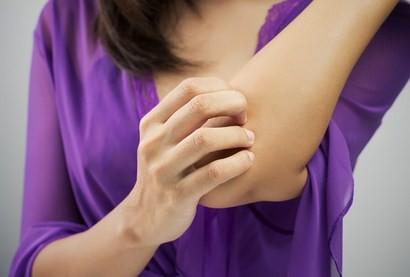 Salep Untuk Dermatitis Kontak