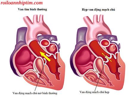 Hẹp hở van tim là nguyên nhân gây tim đập nhanh khó thở
