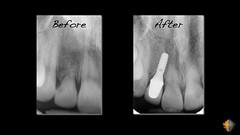 Restore Implants San Antonio TX