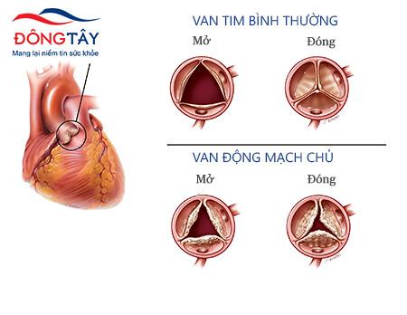 Hẹp van tim động mạch chủ là tình trạng van động mạch chủ mở không hết