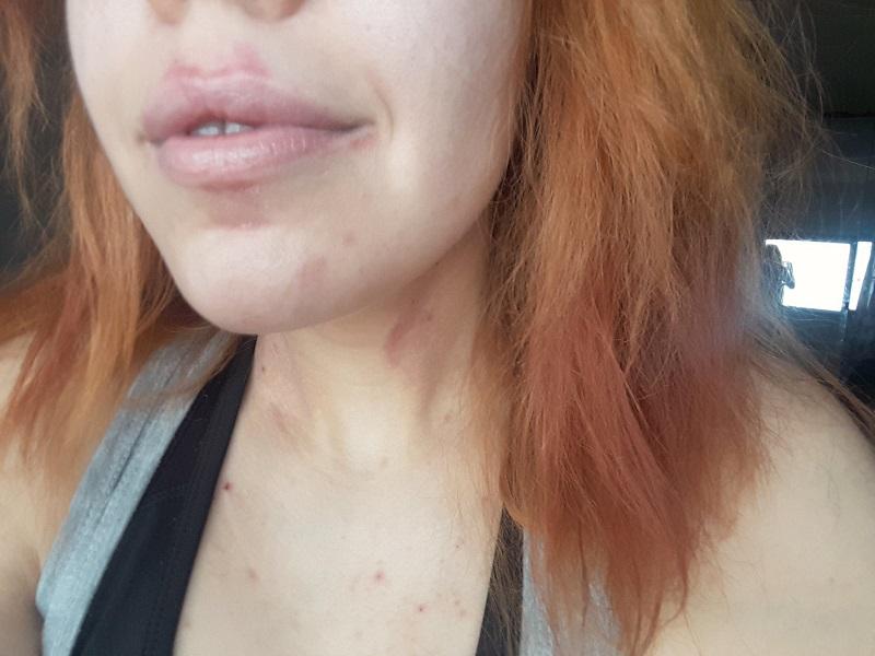 atooppinen iho 3