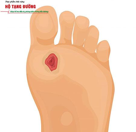 Biến chứng tiểu đường gây lở loét, nhiễm trùng bàn chân