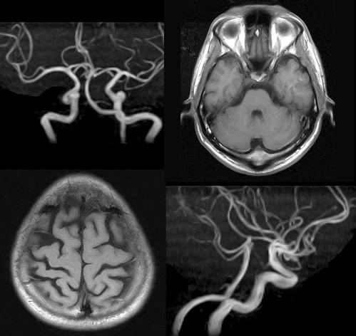 脳ドックのMRIと血管状態