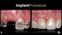 Dental Implants San Antonio TX