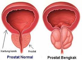 Cara Mengobati Prostat Yang Membesar