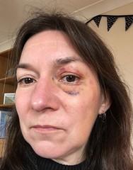 20171210 Black eye at 1030 cropped