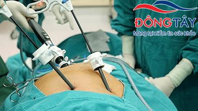 Phẫu thuật cắt túi mật có phải luôn cần thiết?