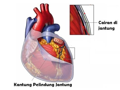 Penyebab Penumpukan Cairan Di Jantung
