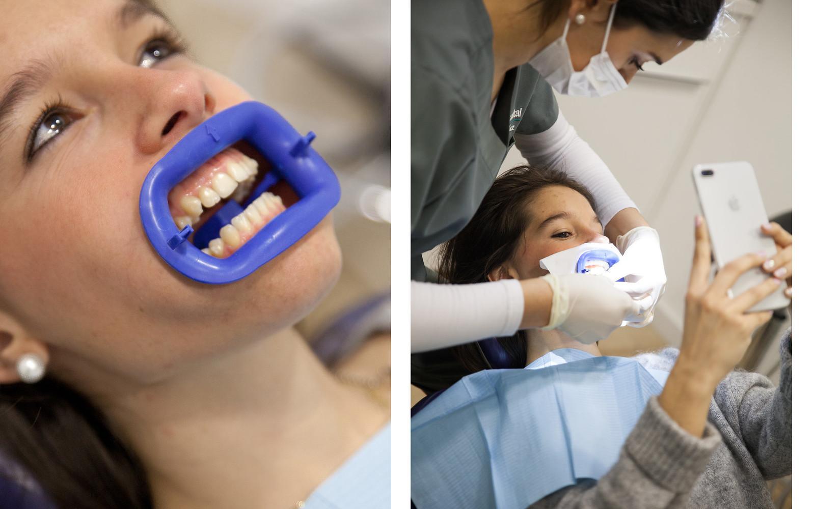 BLANQUEAMIENTO DENTAL blanquear dientes