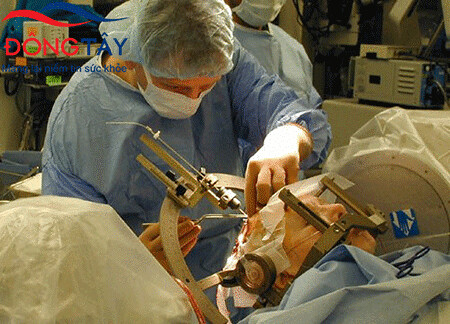 Công nghệ DBS là một phương pháp mới điều trị Parkinson