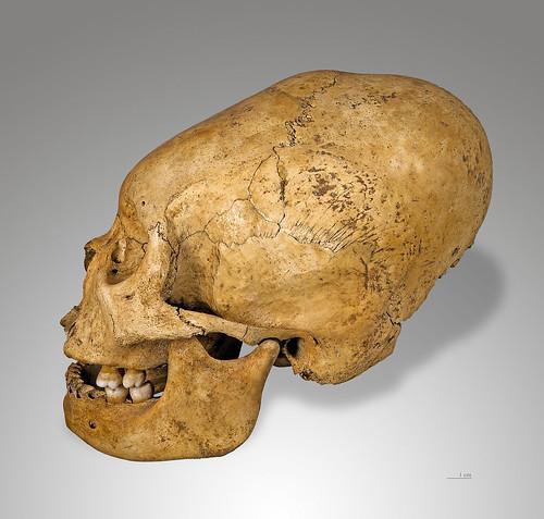 cranialdeformation