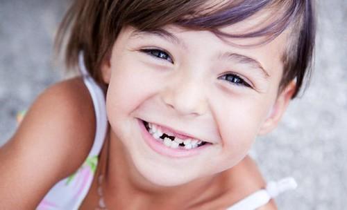 Чому жовтіють зуби