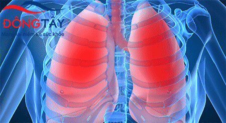 Suy tim sung huyết: cần phát hiện sớm và điều trị hiệu quả