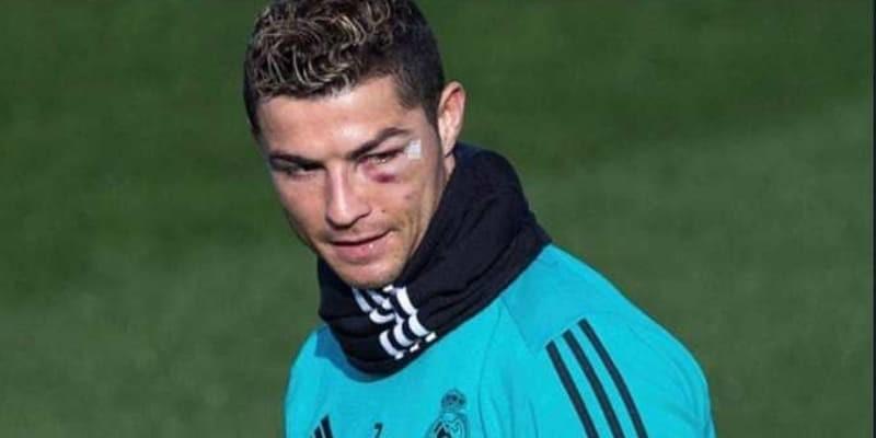 Cedera Yang Diterima Cristiano Ronaldo Cukup Parah