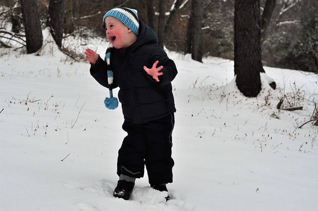 Down syndrome blog