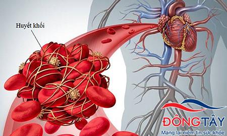 Tim đập nhanh làm tăng nguy cơ hình thành huyết khối