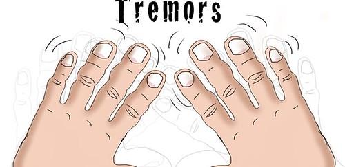 Cara Menghilangkan Tremor Secara Alami