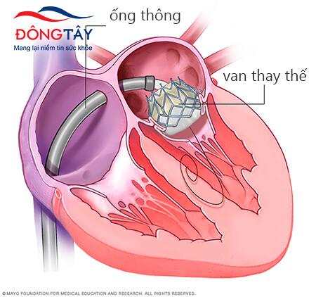 Thay van tim bằng phương pháp qua da