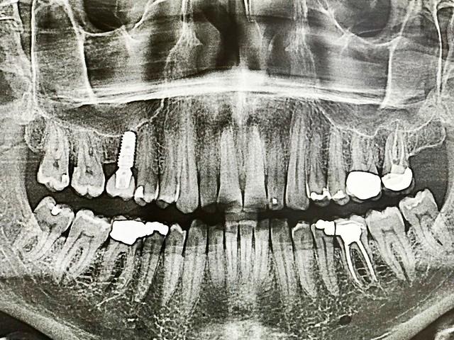 2018/365/032: My Alien Mouth