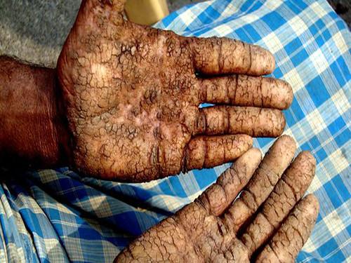 यूपी के बलिया में आर्सेनिक से हाथ में आये जख्म दिखाता एक युवक