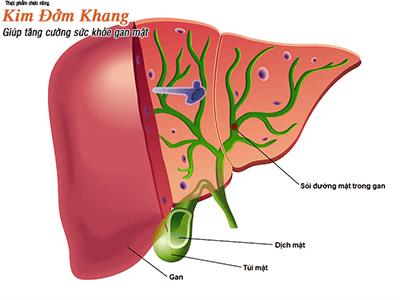 Bệnh sỏi gan có nguy hiểm không? Điều trị thế nào?