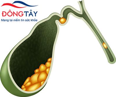 sỏi mật hình thành từ cholesterol