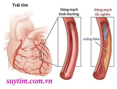 Tắc-hẹp-mạch-vành-dù-là-nặng-hay-nhẹ-cũng-nên-điều-trị-sớm