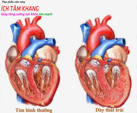 Dày thất trái, thiếu máu cơ tim có chữa khỏi được không?