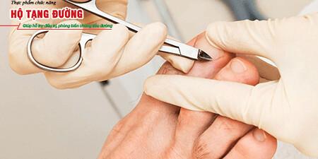 Chăm sóc bàn chân thường xuyên giúp phòng ngừa loét bàn chân tiểu đường