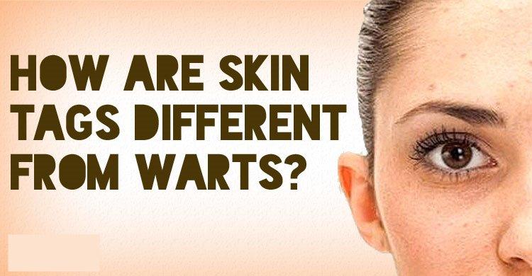 Biaya Operasi Skin Tag