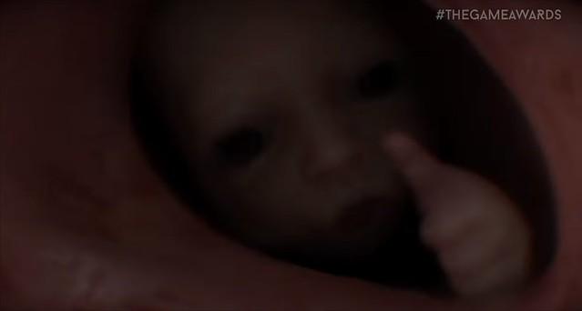 死のストランジング - 親指の上の赤ちゃん