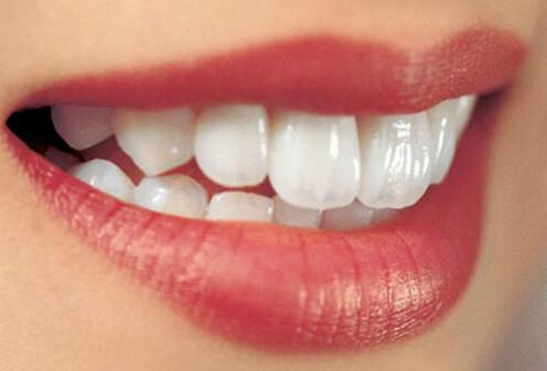 Bọc răng sứ thẩm mỹ cố định