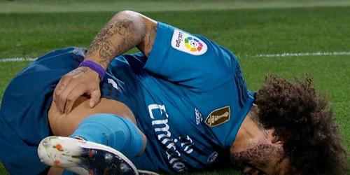 Real Madrid Berharap Marcelo Mengalami Cedera Tidak Parah