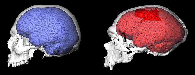 brainevolution3