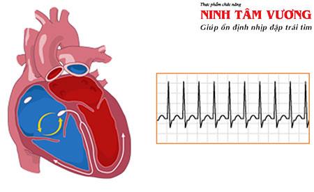 Cách chữa tim đập nhanh để phòng tránh biến chứng nguy hiểm