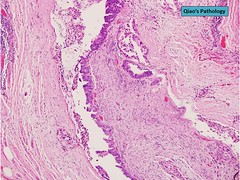 Qiao's Pathology:  Pancreatic Ductal Adenocarcinoma with Perineural Invasion