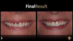 Implant Dentistry San Antonio TX