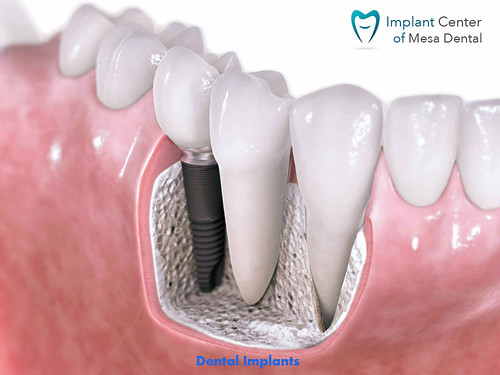 Get Beautiful Teeth at Nominal Dental Implant Cost San Diego