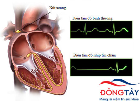 Nhịp tim chậm xảy ra khi tim đập dưới 50 lần/phút