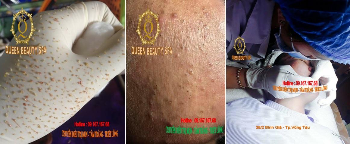 Queen Beauty Spa Vũng Tàu khuyến mãi trị mụn nhân dịp năm mới 2018
