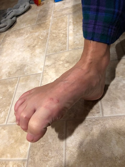 San Antonio - Linda foot with ant bites