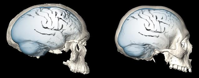 brainevolution1