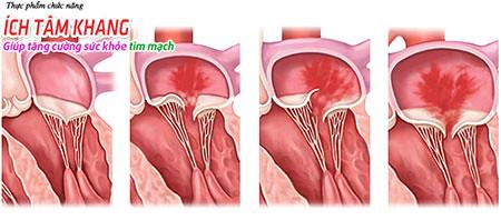 Hở van tim hai lá: Những cách giảm nhanh mệt, khó thở, đau ngực