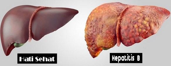 Penyakit Hepatitis Disebabkan Oleh