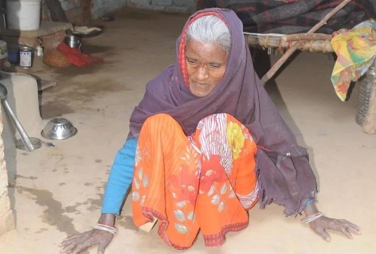 खराब पानी पीने से शरीरिक विकार से ग्रस्त महिला - फोटो : अमर उजाला