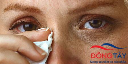 Bệnh Parkinson có thể được chẩn đoán sớm nhờ phân tích nước mắt