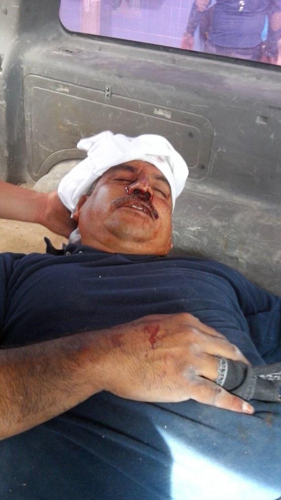 PÁG. 4 (4). Más de 20 heridos entre ciudadanos y policías por la ineptitud de las autoridades municipales de Gomez Palacio.
