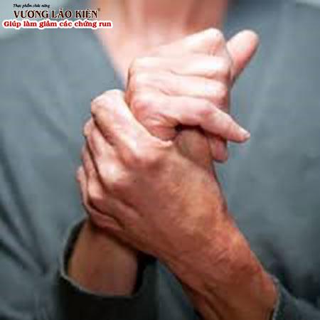 Run tay chân là một trong những triệu chứng điển hình của bệnh Parkinson