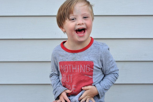 21 Things You May Not Know About Down syndrome